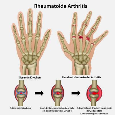 Die rheumatoide Arthritis führt zu einer Gelenkentzündung