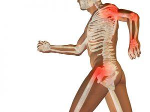 Arthrose Osteoporose und Vitamin D