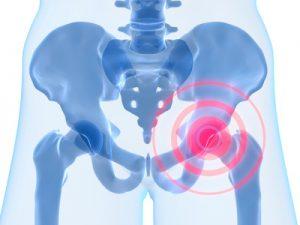 MSM kann bei Arthrose helfen Arthritis