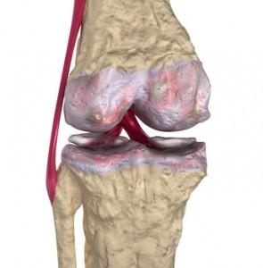 Kniegelenksarthrose MSM Arthritis