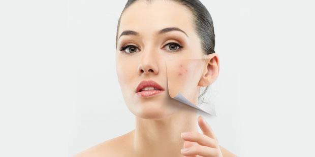 Akne ist eine der häufigsten Hauterkrankungen. Die unschönen Pickel und Mitesser im Gesicht lassen die Betroffenen meist sehr leiden