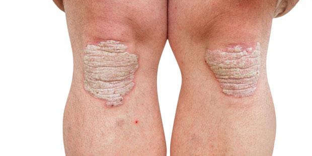 Dicke Hornschicht bei Schuppenflechte am Knie