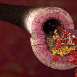 Arteriosklerose Plaque Gedächtnis Homocystein