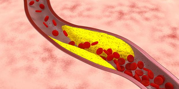 Arterienverkalkung eine Ablagerung in der Gefäßwand