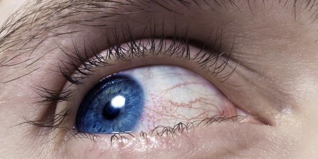 Sind Ihre Augen gerötet, brennen oder jucken? Das kann ein Anzeichen für eine Augenentzündung sein