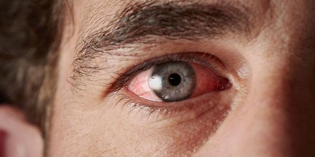 Die Bindehaut des Auges ist im Fall einer Entzündung gerötet