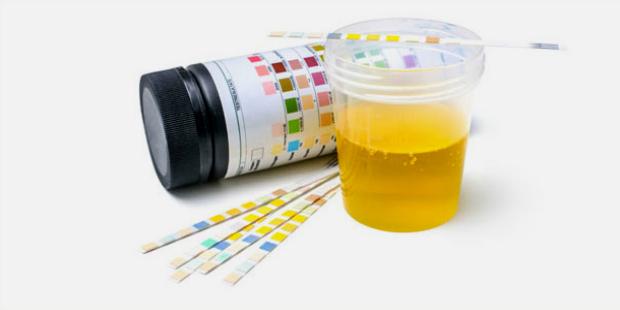 Urin-Messstreifen zeigt Blasenentzündung an