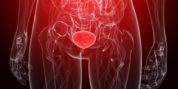 Illustration einer Blasenentzündung