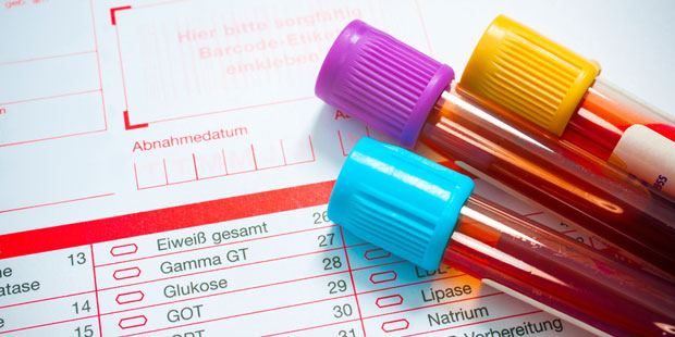 Zwei Blutproben in Reagenzgläsern