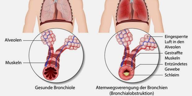 Gesunde Bronchien und entzündete Bronchien