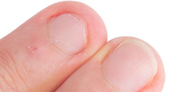 Brüchige Nägel verursachen Schmerzen