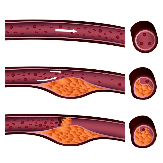 Zu hohe Cholesterin-Spiegel können zu Gefäßverkalkung führen