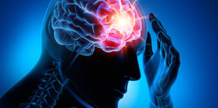 Epilepsien sind die häufigsten chronischen (dauerhaften) Erkrankungen des zentralen Nervensystems