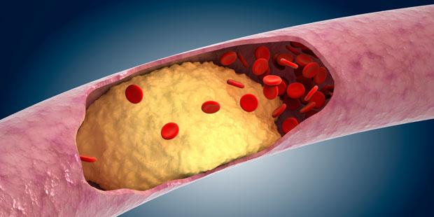 Erhöhte Blutfettwerte vergrößern das Risiko, an einer Arterienverkalkung zu erkranken