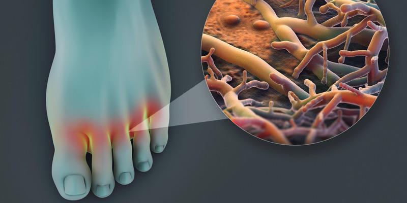 Nagelpilz entsteht häufig in Folge eines nicht behandelten oder nicht ausreichend behandelten Fußpilzes