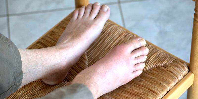 Gicht ist ein Oberbegriff für verschiedene Stoffwechselerkrankungen, bei denen sich zu viel Harnsäure im Blut ansammelt