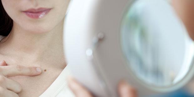 Der Hautarzt kann Fibrome zweifelsfrei von anderen Hautknoten unterscheiden