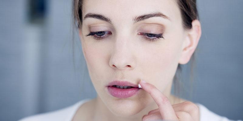 Herpes-Behandlung mittels Salbe
