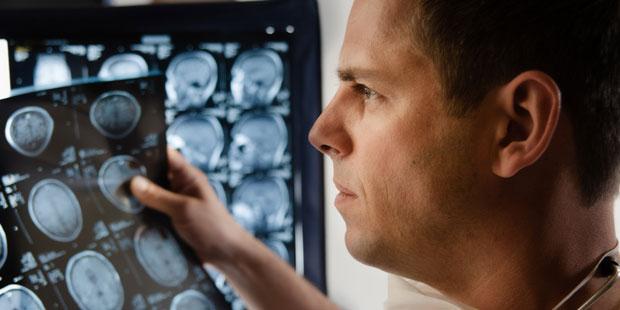 Arzt erkennt auf CZ-Aufnahmen einen Hirntumor