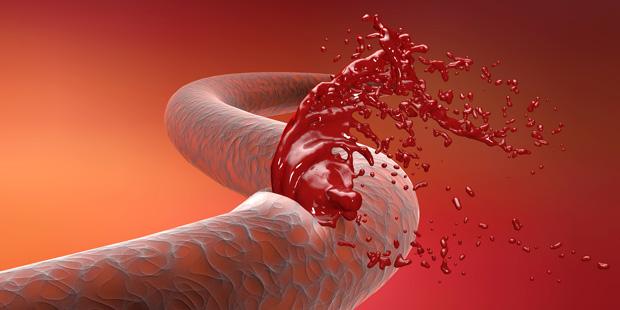 Bei einer inneren Blutung tritt durch eine Verletzung Blut aus den Gefäßen aus