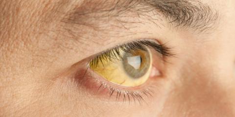 Gelb verfärbte Augen können oft erste Hinweise auf eine ernsthafte Lebererkrankung sein
