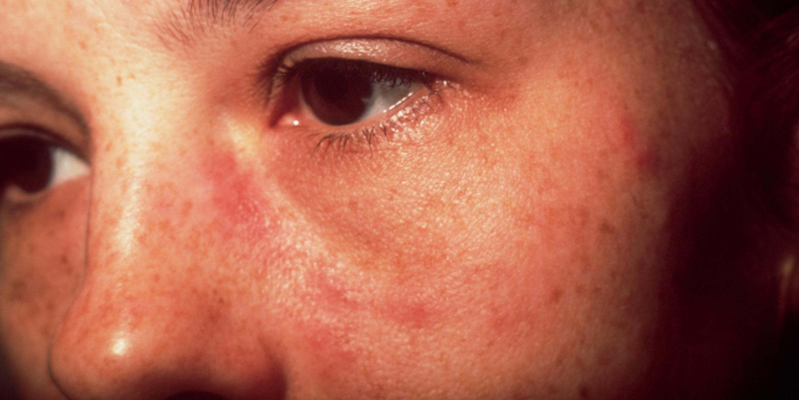 Das vielleicht bekannteste Symptom des Lupus erythematodes ist das sogenannte Schmetterlingserythem, ein rötlicher Hautausschlag im Gesicht