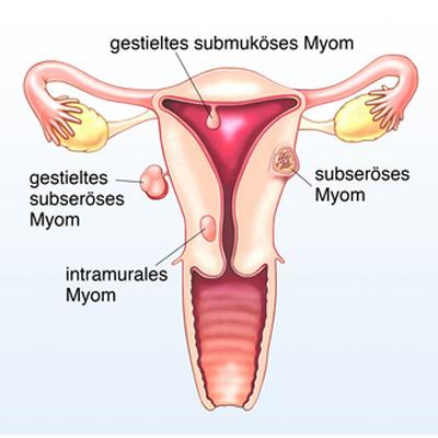 Etwa jede vierte bis sechste Frau im gebärfähigen Alter ist von einem Myom betroffen