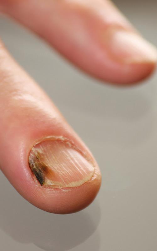 Nagelpilz an den Fingernägeln wird meistens durch einen Hefepilz ausgelöst