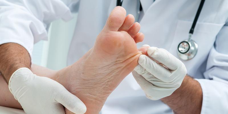 Ein Dermatologe (Hautarzt) oder eine Podologen (Arzt für Fußkrankheiten) erkennt einen Nagelpilz meist auf den ersten Blick