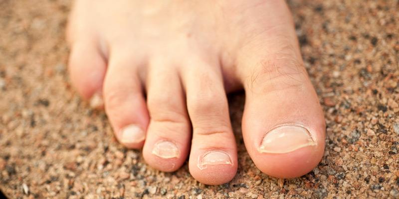 Bei einer Nagelpilzinfektion an den Fußnägeln sind der große und der kleine Zeh am häufigsten betroffen