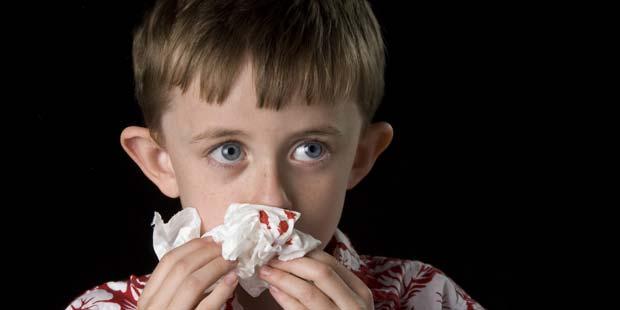 Nasenbluten beim Kind Symptom von ITP
