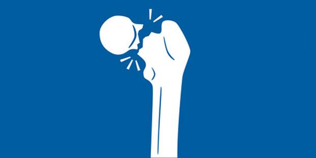 Oberschenkelhalsbruch bricht der Knochen