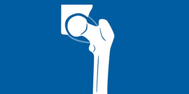 Der Oberschenkelknochen (Femur) bildet an seinem abgewinkelten, oberen Ende – dem Oberschenkelhals