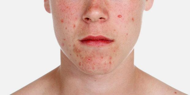Pickel sind die häufigste Hauterkrankung überhaupt. Sie bilden sich vor allem zu Beginn der Pubertät, meist im Gesicht, auf den Schultern und dem Rücken oder im Dekolleté