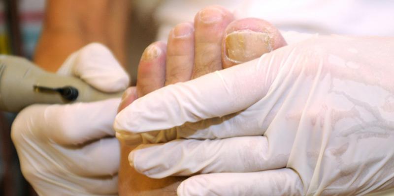 Eine gewissenhafte Fußpflege hilft dabei, Mikroverletzungen und damit auch dem Eintritt von möglichen Pilz-Erregern vorzubeugen