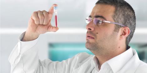 Der PSA-Bluttest zur Prostatakrebsvorsorge ist umstritten