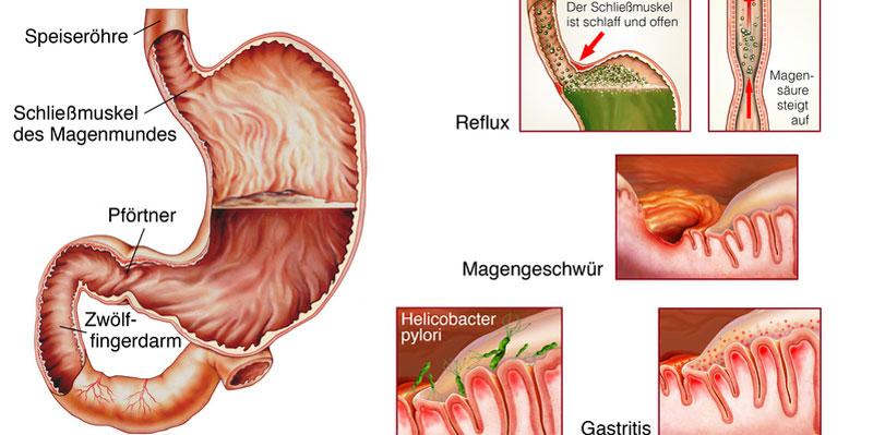 Zu den Reflux-Ursachen zählen saures Aufstoßen und Schmerzen hinter dem Brustbein