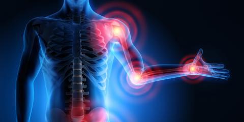 Arthrose in den Gelenken kann sehr schmerzhaft sein