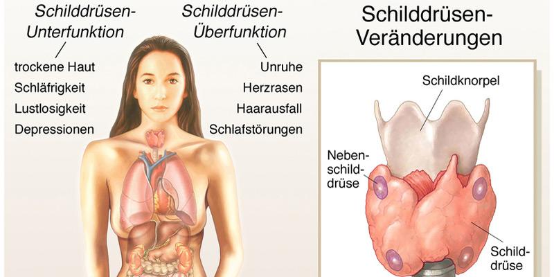 Schilddrüsenveränderungen