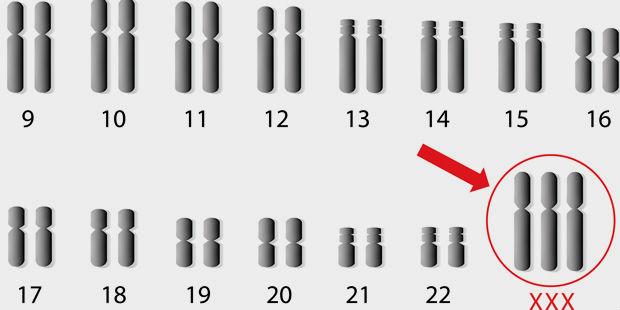 Trisomien gehören zur Gruppe der Chromosomenanomalien